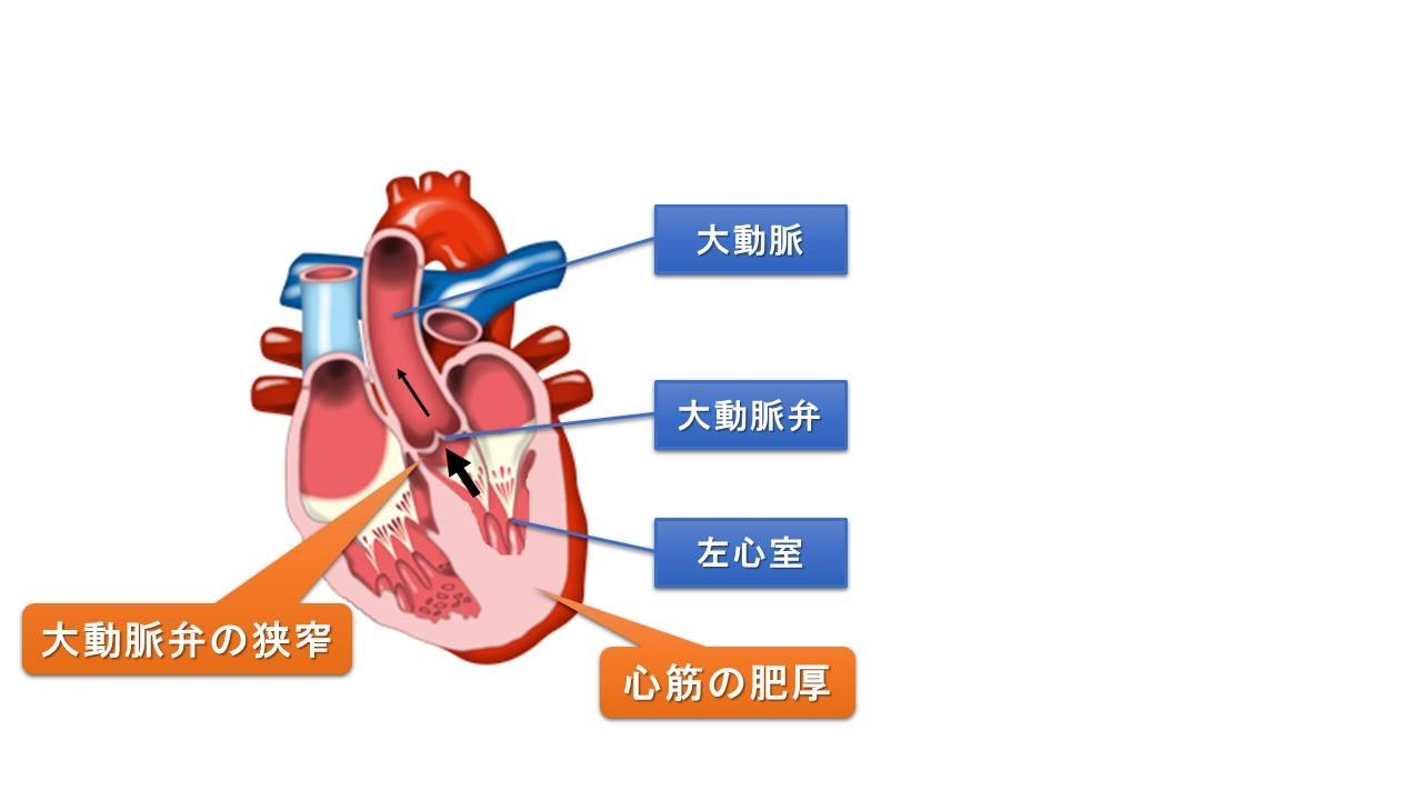 大動脈弁狭窄症-循環器科【みなみ野動物病院(八王子みなみ野)】