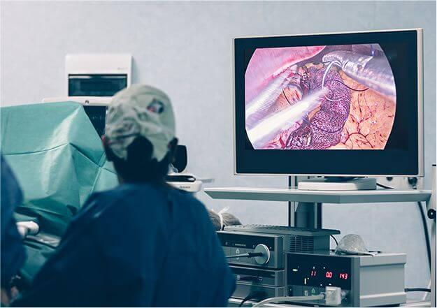 内視鏡検査