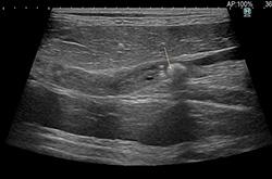 症例13:尿管結石