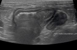 症例26:好酸球性硬化性線維増殖症(GESF)