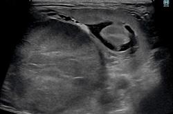 症例27:腎細胞癌