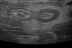 症例29:猫消化管リンパ腫(回腸)