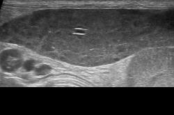症例37:多中心型リンパ腫の脾臓浸潤